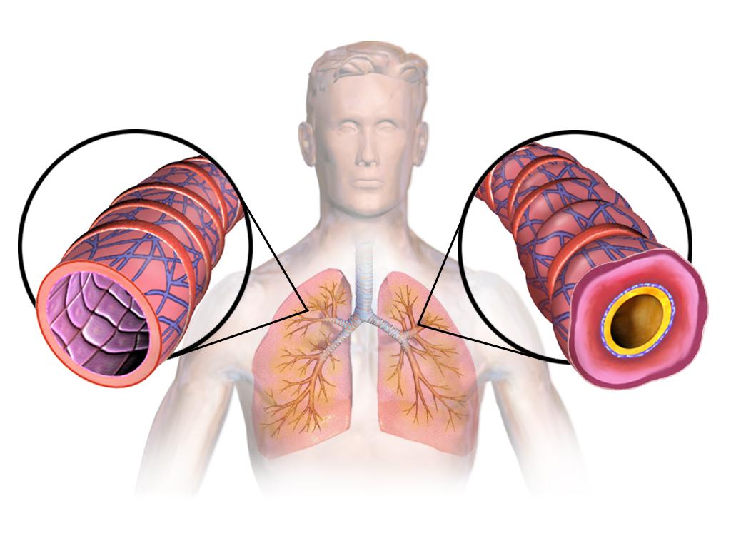 Астматикам: продукты, которые помогут вам дышать лучше и сохранить ваши легкие здоровыми